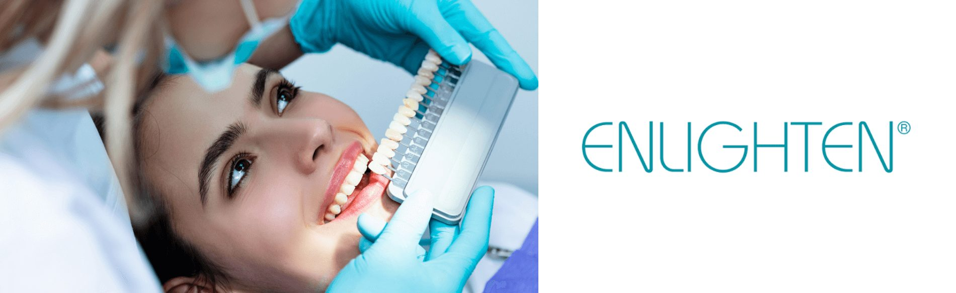 Enlighten whitening at Kiln Lane Dental
