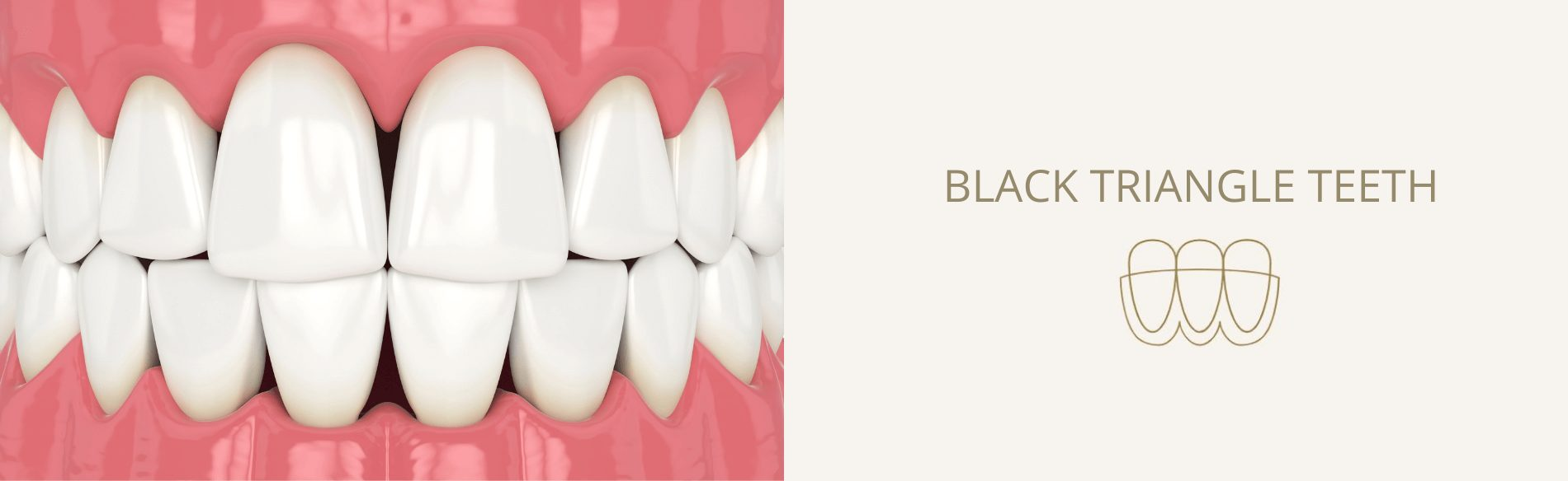 Diagram to show black triangles between teeth