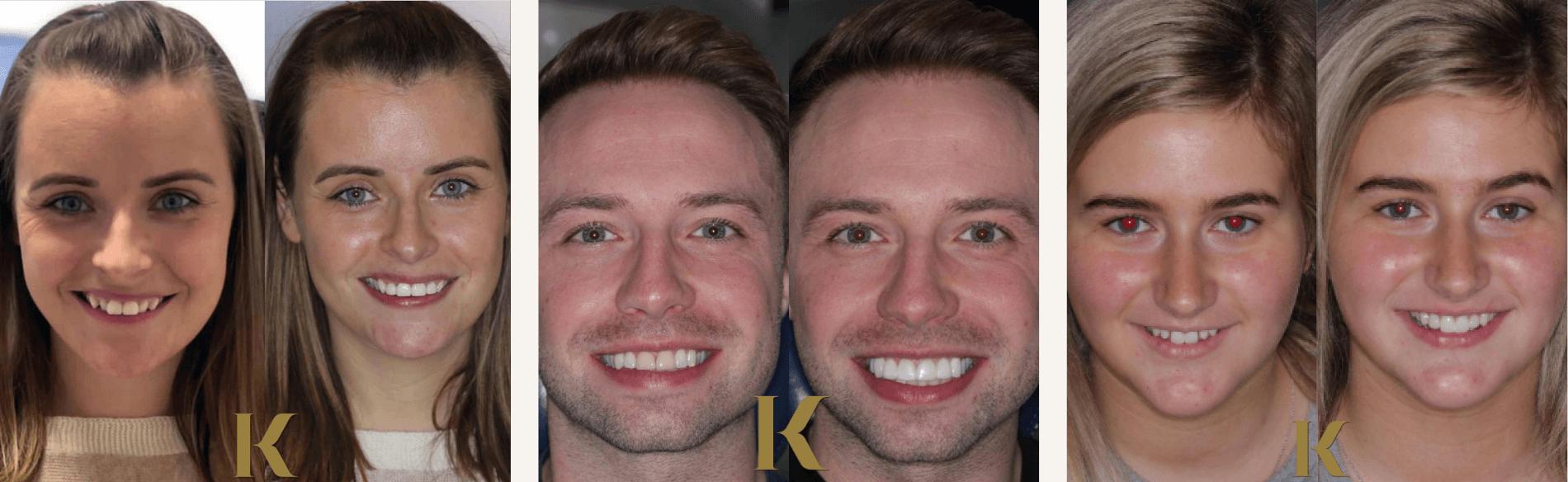 Examples of composite bonding at Kiln Lane Dental